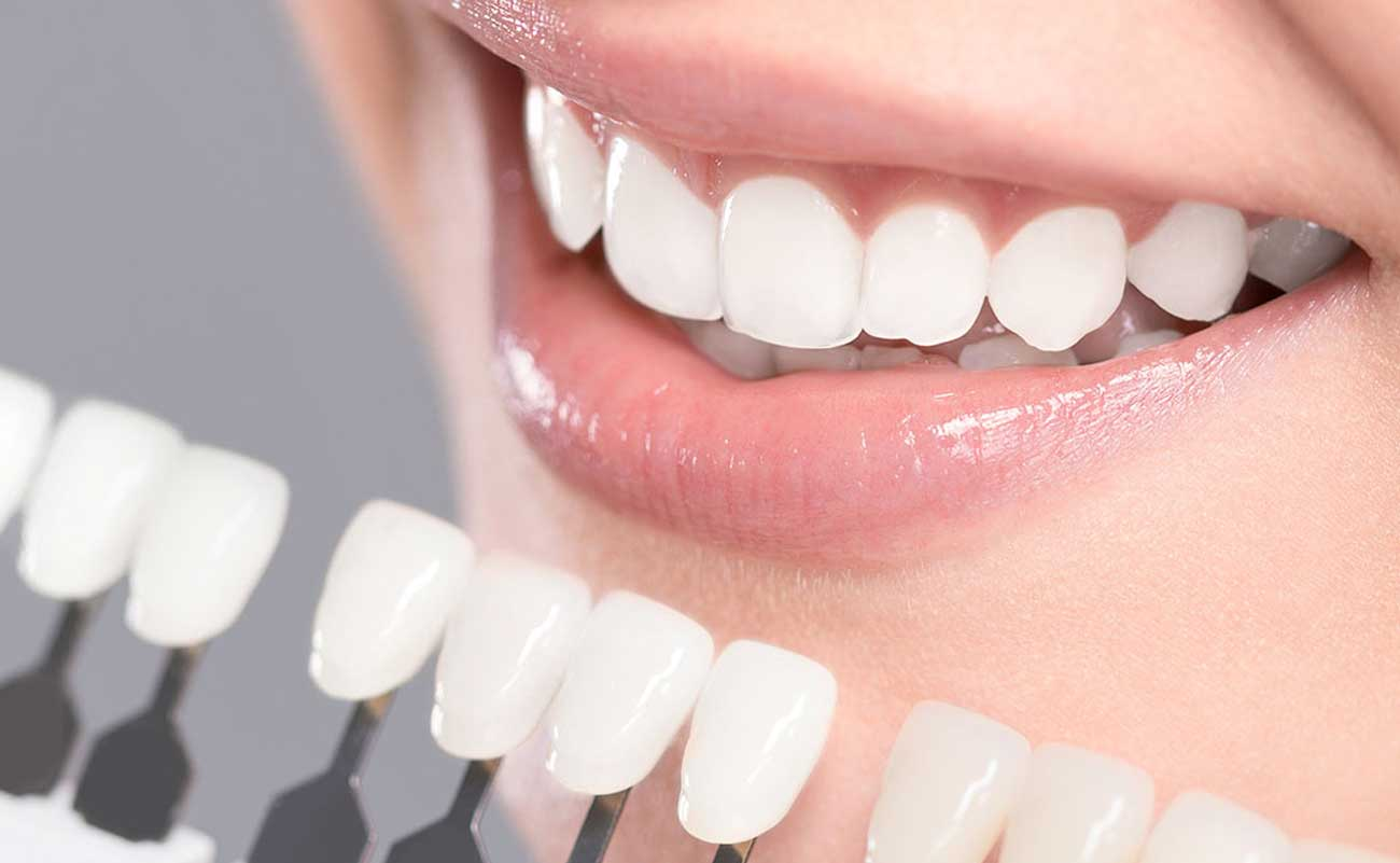 Opt For The Right Source For Best Teeth Whitening Birmingham